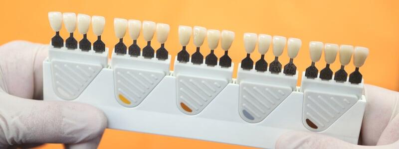 Blanqueamiento dental - Color de los dientes