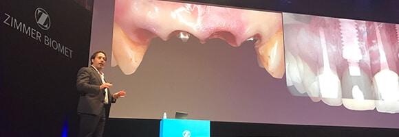 El Dr. Luciano Badanelli y el Dr. Juan Arias invitados al XV Simposio Ibérico Zimmer Biomet Dental 2017. Aquí el resumen de su conferencia.