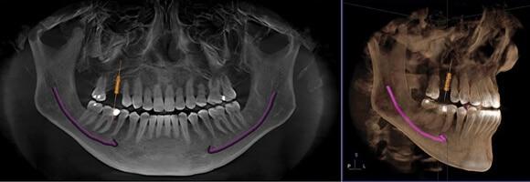 ¿Duelen los implantes dentales al morder?