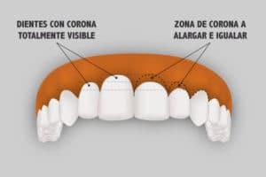 Alargamiento de corona dentaria