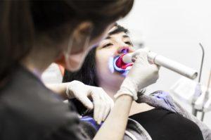 Blanqueamiento dental - Sesión con resultados inmediatos.
