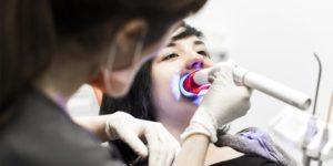 Blanqueamiento dental - Clínica Dental Luciano Badanelli.