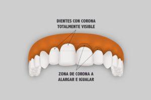 Cirugía Estética de la encía - Alargamiento de corona dentaria.