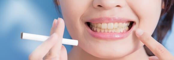 Cómo cuidar el color de los dientes - Efectos del tabaco