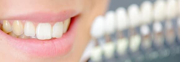 Cómo cuidar el color de los dientes - Tono de los dientes