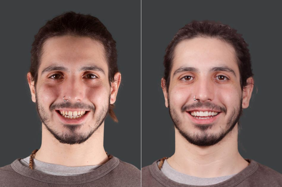 Diseño de sonrisa - Antes y después.