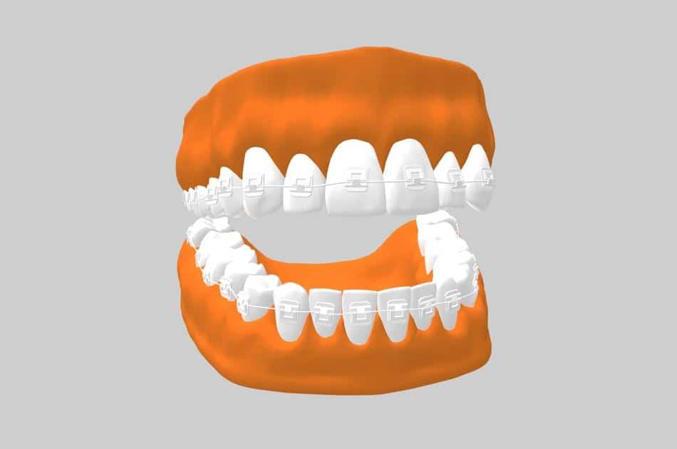 Ortodoncia estética - Brackets de zafiro