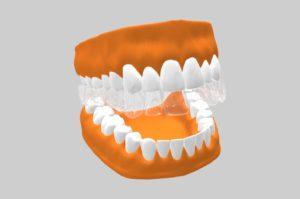 Ortodoncia estética - Ortodoncia invisible invisalign.