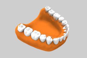 Ortodoncia estética - Ortodoncia lingual