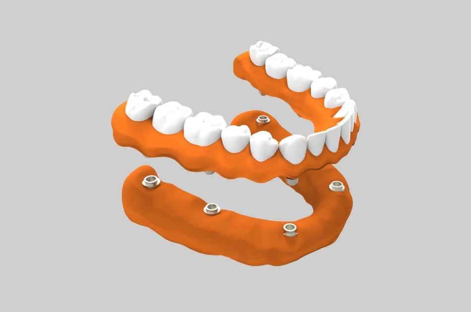 Rehabilitación oral - Prótesis sobre implantes.