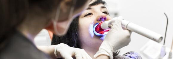 Blanqueamiento dental - Expertos en estética dental