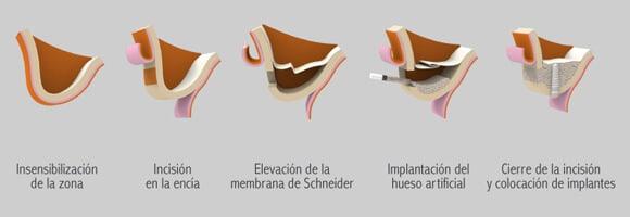 Injerto de hueso - Elevación del seno maxilar