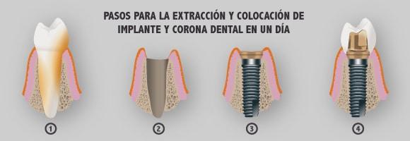 Implantes de carga inmediata - Pasos para la extracción y colocación de implante y corona dental en un día