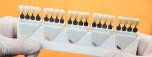 Blancorexia - Qué aspectos influyen en el color blanco de los dientes