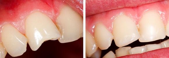 Carillas dentales - Carillas de composite