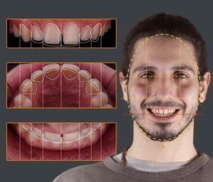 Carillas dentales - Diseño de sonrisa