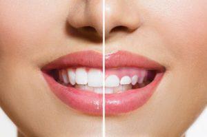 Cirugía oral - Cirugía estética de la encía