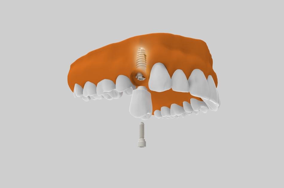 Dientes en un día - Ventajas de los implantes dentales con dientes en un día.