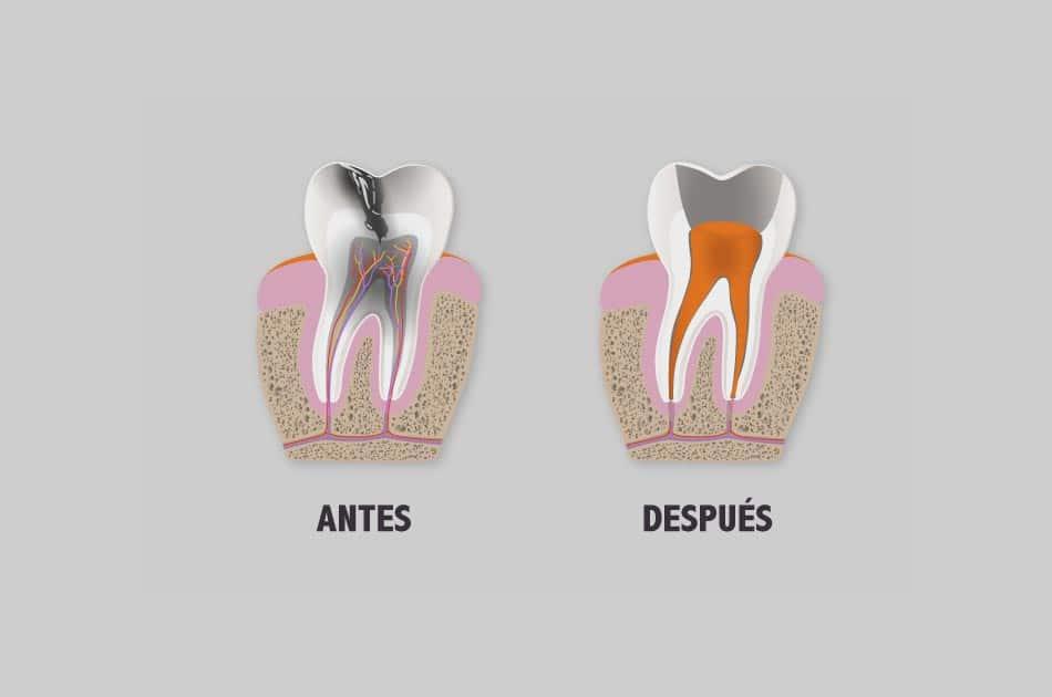 Endodoncia - Para qué sirve