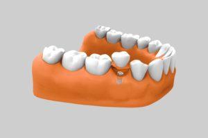 Tratamiento con implantes dentales cortos