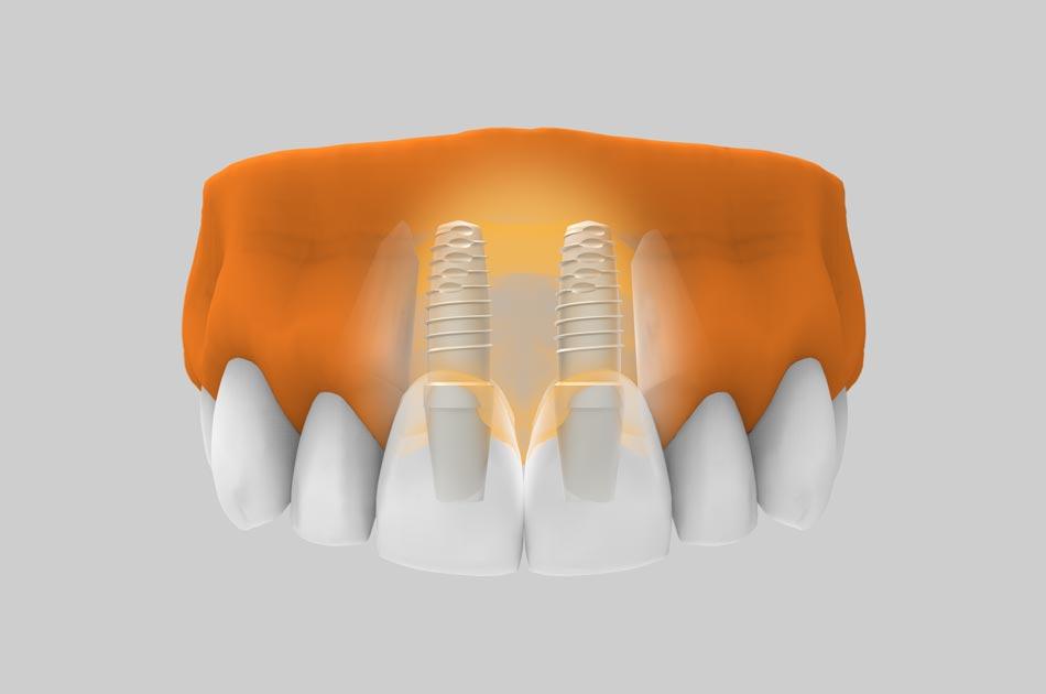 Implantes dentales en zona estética - Tratamiento.