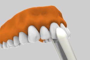 Implantes dentales post extracción con óptima integración.