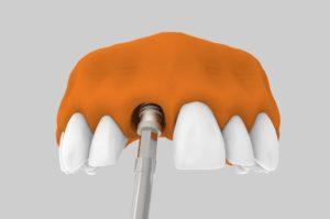 Implantes dentales post extracción - Ventajas.