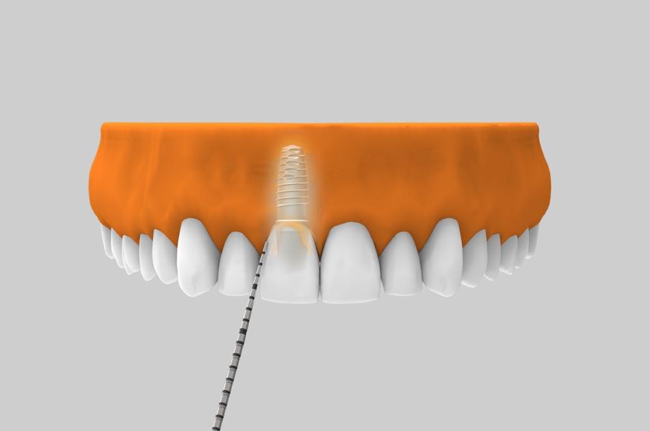 Mantenimiento de implantes dentales - Revisiones periódicas