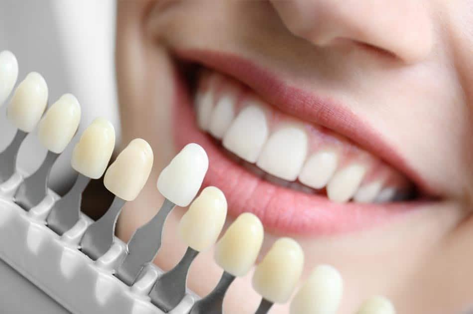 Odontología conservadora - Carillas de porcelana