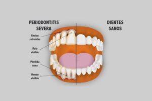 Periodoncia - Periodontitis severa