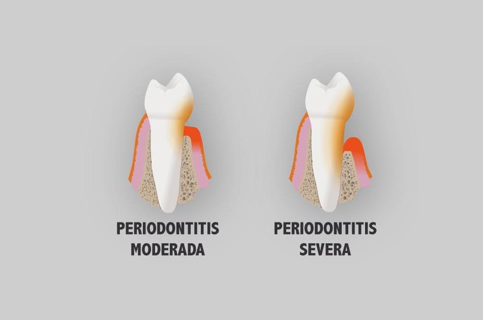 Periodoncia - Periodontitis