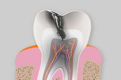 Prevención e higiene dental - Caries