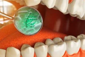 Prevención e higiene dental - Mal aliento