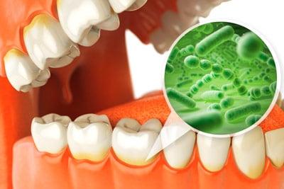 Prevención e higiene dental - Placa
