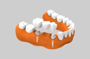 Prótesis dental sobre diente