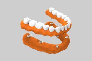 Prótesis dental sobre implante