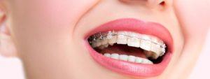Dientes torcidos - Ortodoncia con brackets