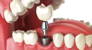 Tratamiento con implantes dentales - Partes de un implante dental