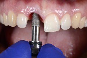 En qué consiste el tratamiento con implantes dentales
