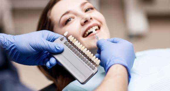 Blanquear los dientes - Tono de los dientes