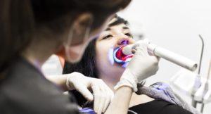 Blanquear los dientes - Blanqueamiento dental combinado