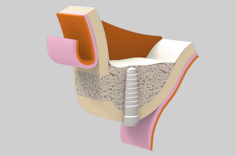 Cirugía oral - Elevación del seno maxilar