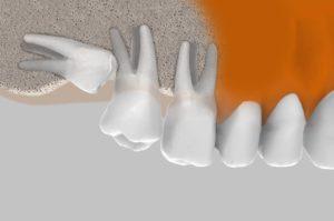 Cirugía oral - extracciones complejas