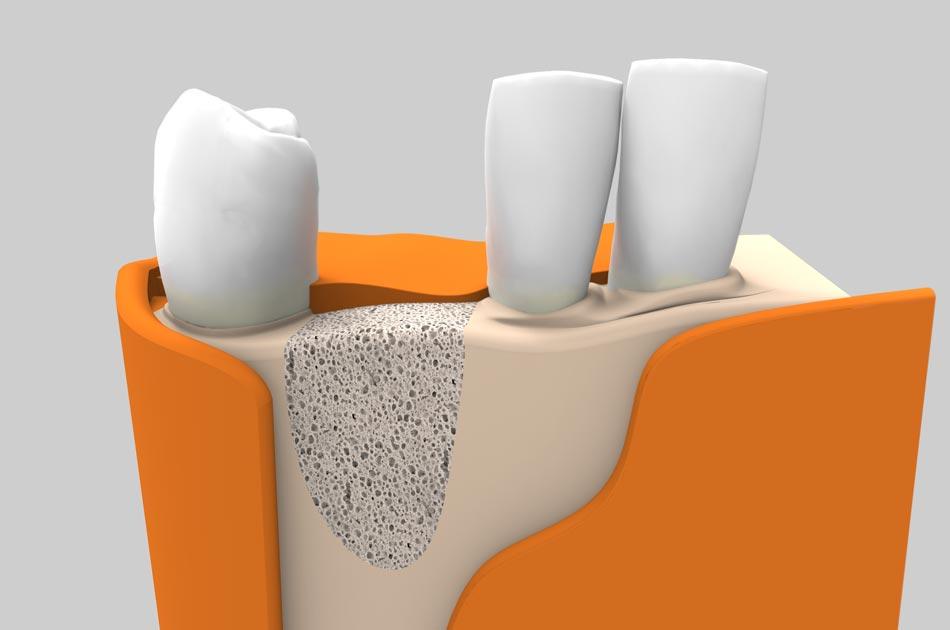 Cirugía oral - Regeneración ósea