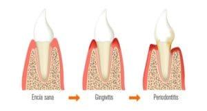 Qué es la gingivitis y por qué se produce