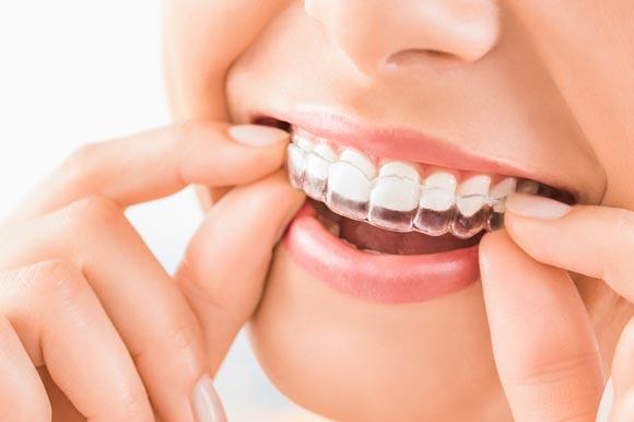 Invisalign: ¡descubre la ortodoncia invisible!