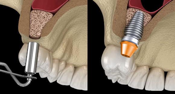 Tratamiento con regeneración ósea