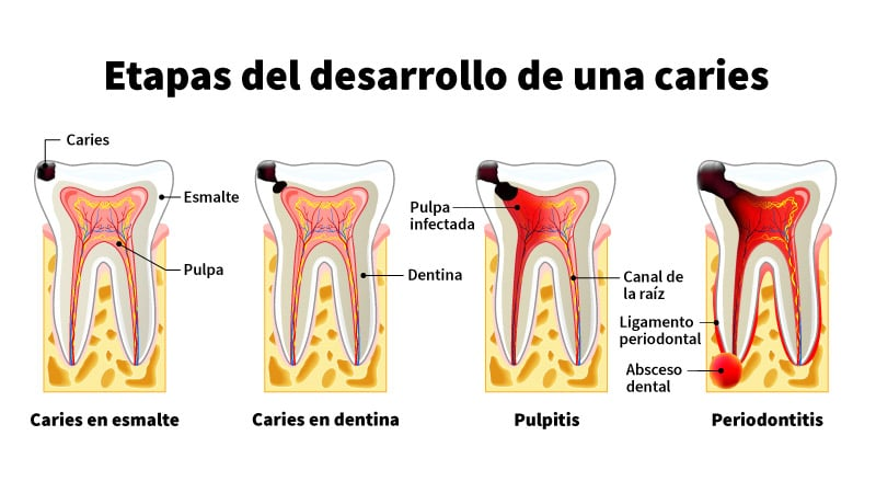 Qué es una caries dental