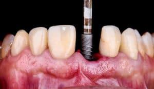 ¿Qué es la implantología dental?