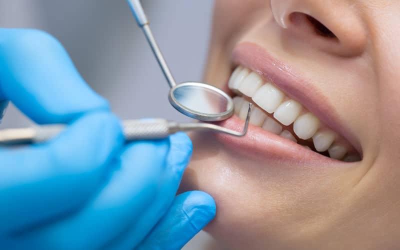 Consejos de prevención: cuidados en casa para salvar tus dientes